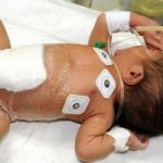 Малышу, родившемуся с шестью ногами, сделали операцию